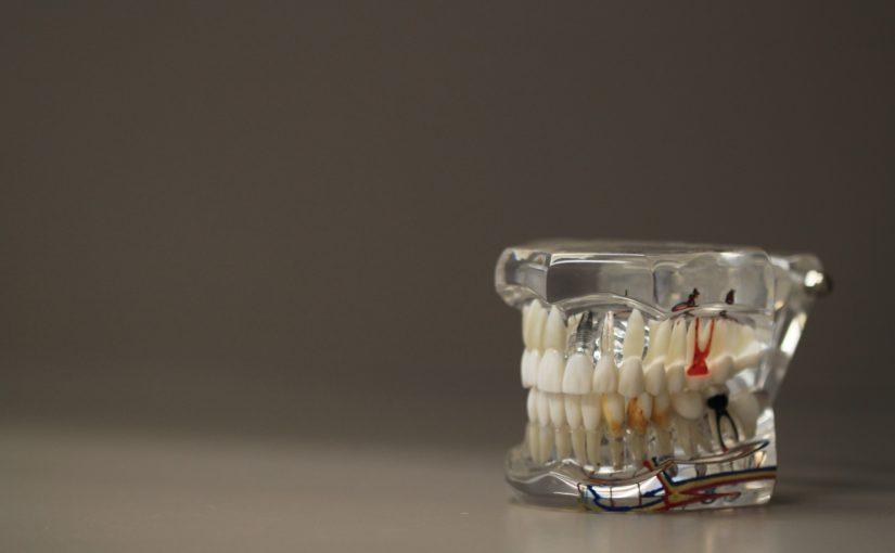 Zła droga żywienia się to większe niedobory w ustach a także ich brak